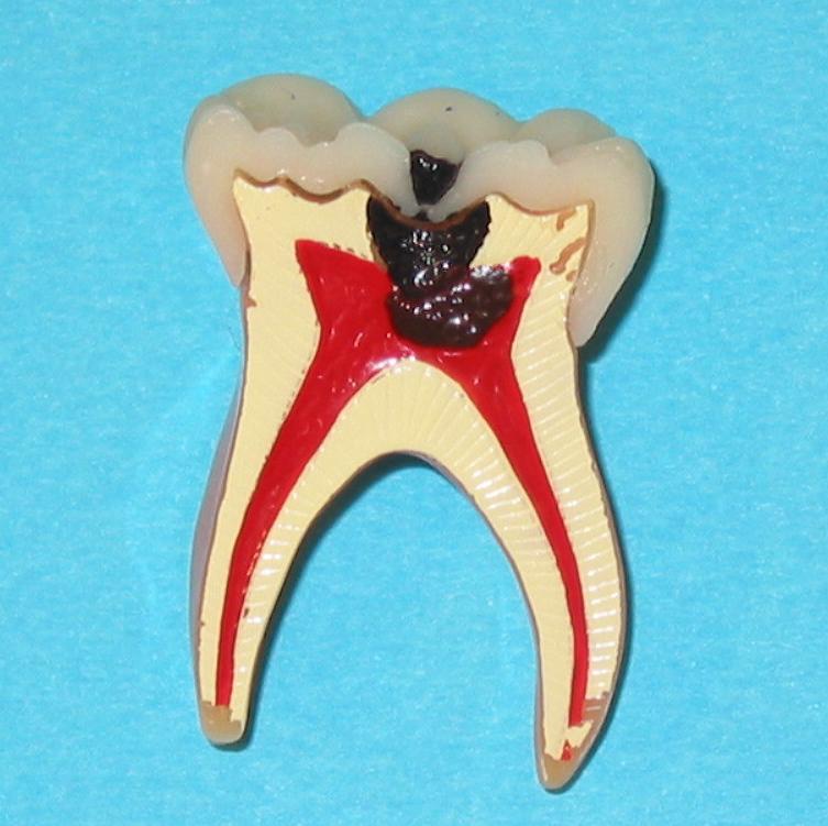 Endodontie 1