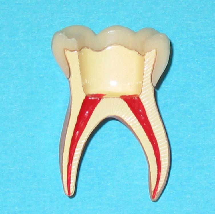 Endodontie 2