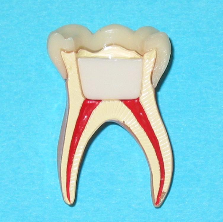 Endodontie 3