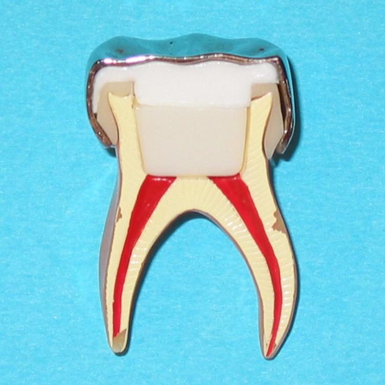 Endodontie 4